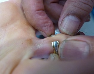 ring cut off by Auckland jeweller